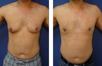 male-breast-surgery-patient-10-front-350x225