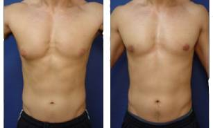 male-breast-surgery-patient-8-5