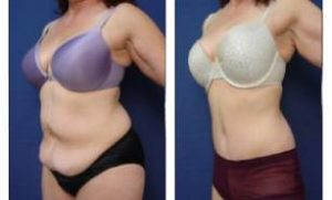 tummy tuck and liposuction surgery - left lateral view